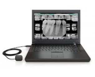 Dental X-Rays, North York Dentist