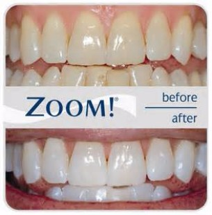 Zoom! Teeth Whitening System, North York Dentist
